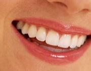 Учени създадоха протеинов лак, предпазващ зъбите от кариес