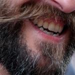 Мъжките бради с повече бактерии от кучешка муцуна