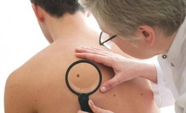 200 000 българи страдат от атопичен дерматит