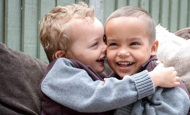 Едно на милион - близнаци от Лондон са с различен цвят на кожата