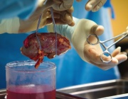 "ГДБОП разследва 14 трансплантации в болница ""Лозенец"""