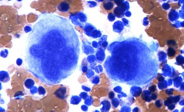 Аутопсиите на пациенти с коронавирус показват, че кръвни съсиреци от
