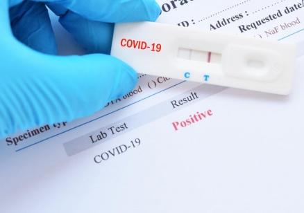 2689 случаи на коронавирус у нас при 11 376 PCR теста