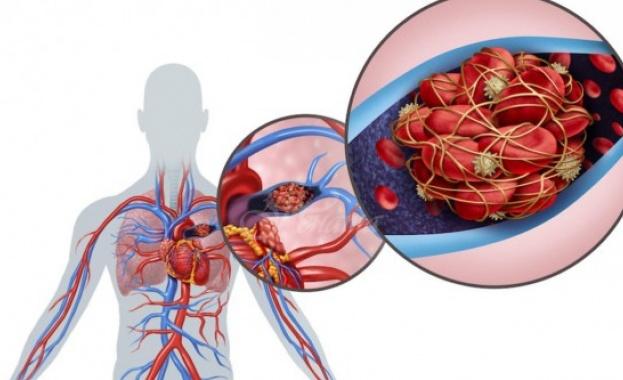 4 храни, които предотвратяват образуването на кръвни съсиреци